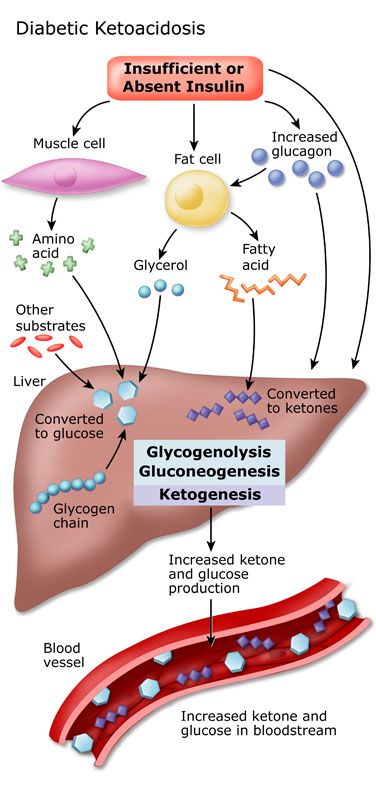 Diagram shows an illustration of a liver and how sugars dealt with in patients with type 1 diabetes.