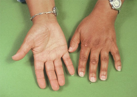 Image of a woman's hands showing the colour changes in skin caused by Addison's Disease