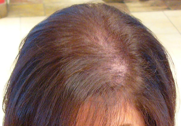 Image of a woman's scalp, showing a widening or thinning of hair along the centre parting.