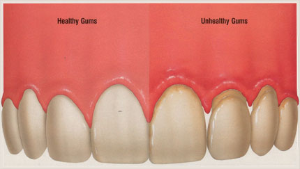 Image showing a set of teeth. The first half of the teeth are healthy without plaque, the second half show receeding gums and plaque build up that causes bad breath.